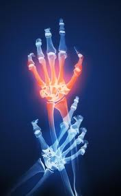 Premature aging of immune cells present in joints of kids with chronic arthritis