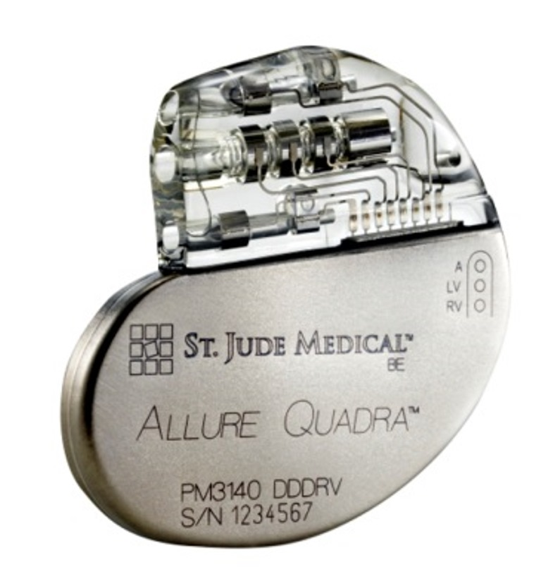 St. Jude Medical Announces First Implant of Next Generation Quadripolar Pacemaker in India