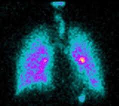 Saket City Hospital Observes International Day Of Radiology