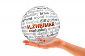 Alzheimer11