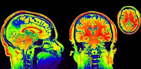 neuroimaging in India