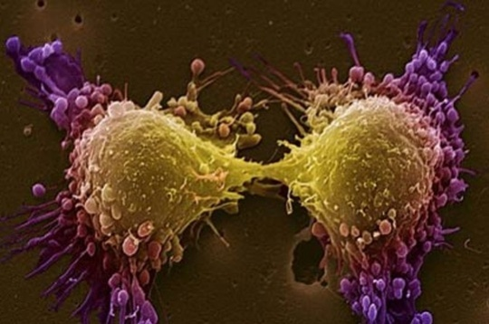 New tech developed to diagnose cancer cells