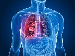 Chronic Bronchitis Patients Breathe Easier with Lung Flute, says UB Study