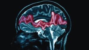 epilepsy-hyaluronan-genetics