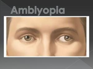 amblyopia-