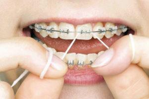 dental healthcare