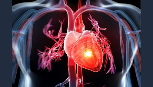 heart_disease