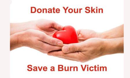 skin donation