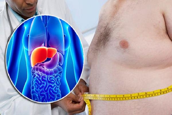 check up for fatty liver