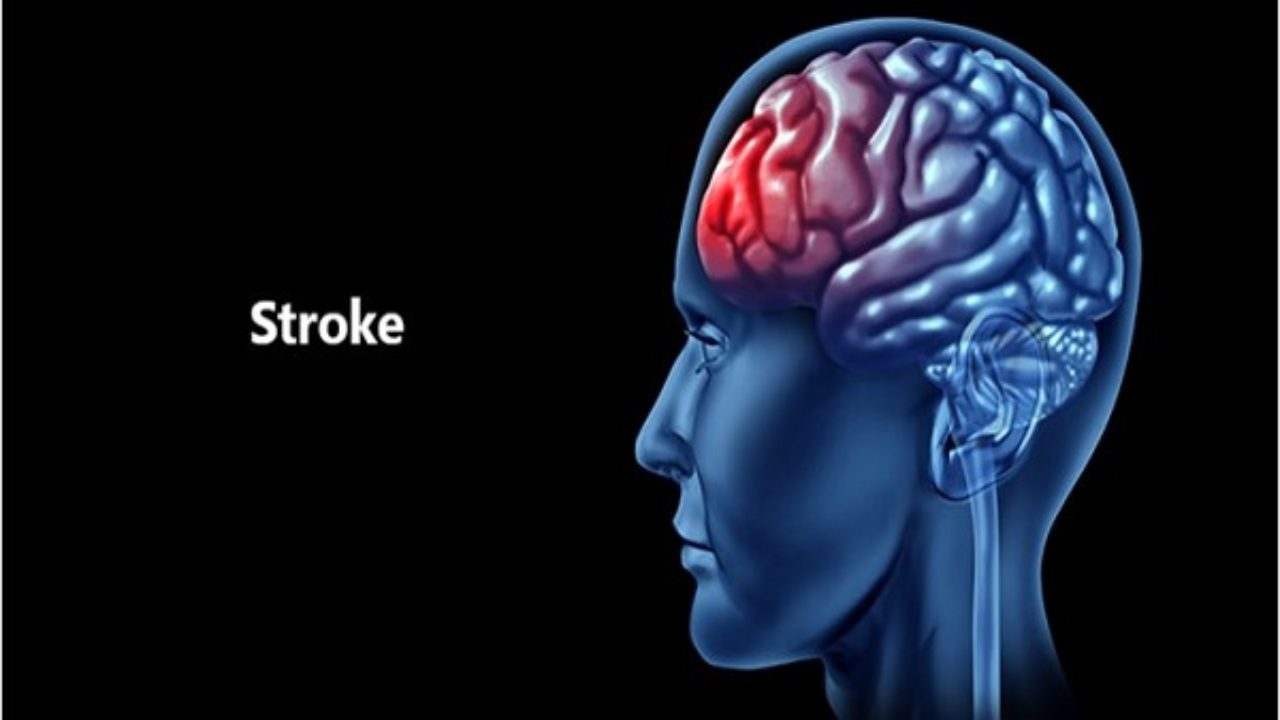 Understanding Incidences Of Stroke Young Adults Ehealth Magazine