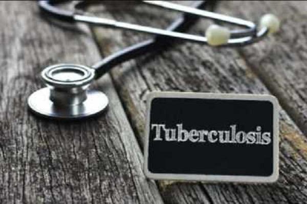COVID-19 TB deaths