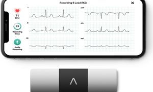 Us firm AliveCor
