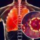 Cardiovascular disease management